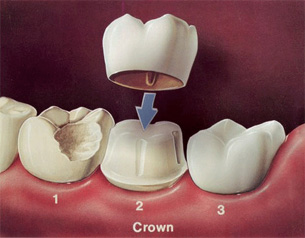 crowns-inner-thumb-1