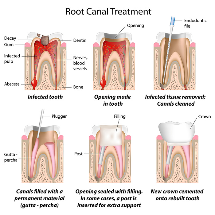 root canal traetment