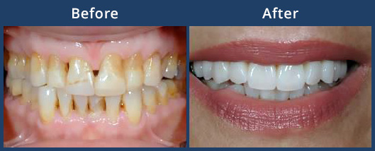 veneers-before-after-thumb
