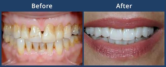 veneers-before-after-thumb