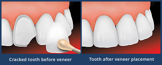 veneers-before-after-thumb1